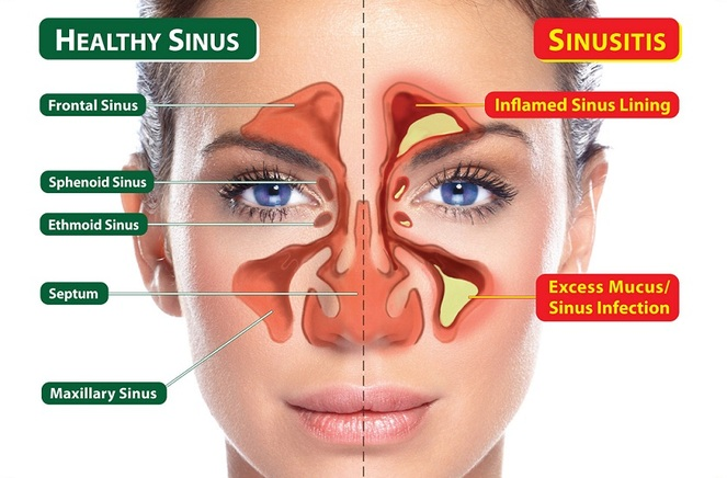 healthy sinus and sinusitis